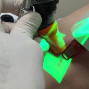 Laser Transdérmico como opção de tratamento